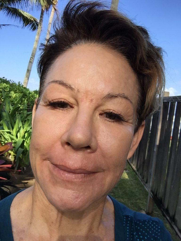 Carol showing her Type 3 skin