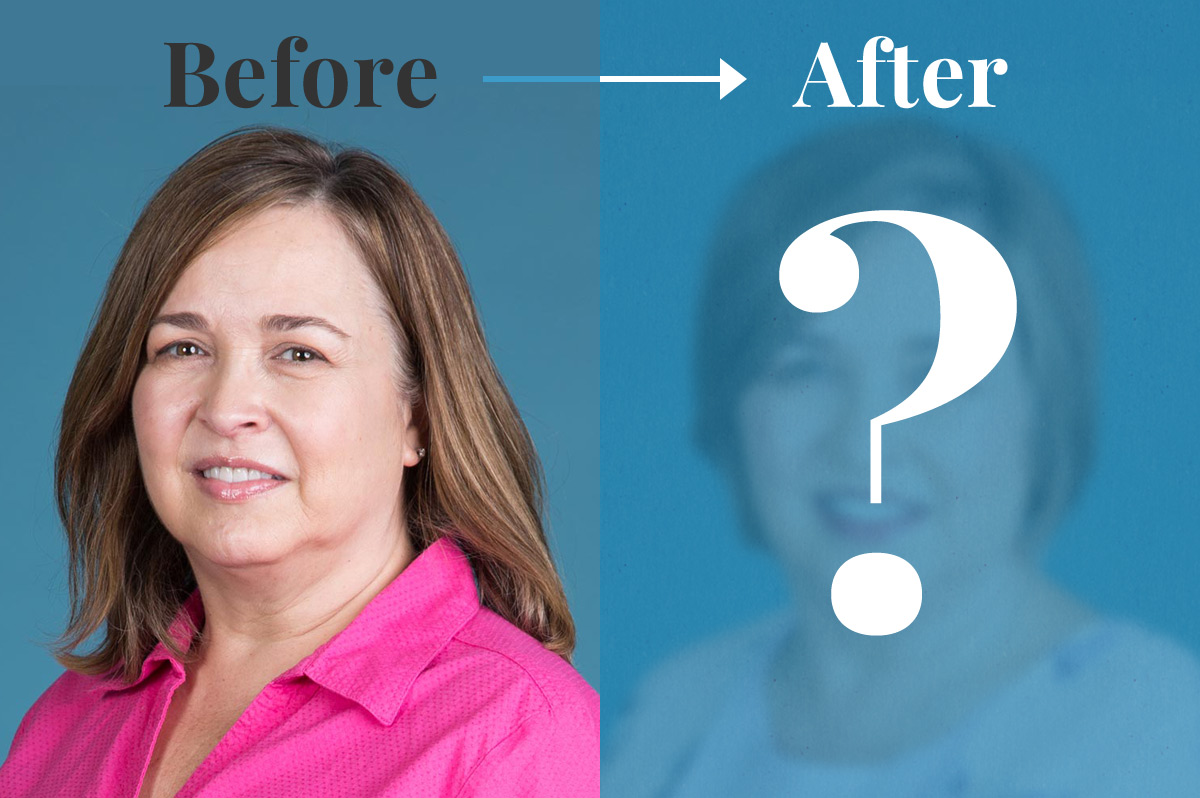 "Before & After of women with a question mark covering her ""after"""