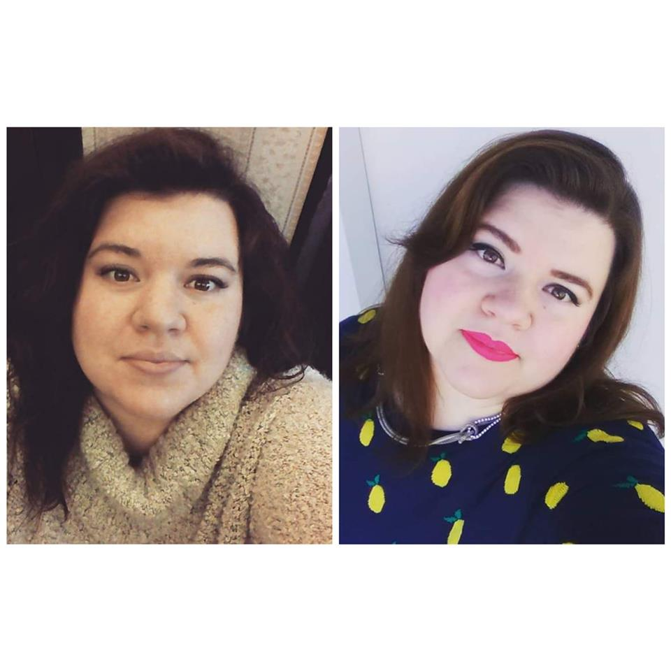 Ashley Type 4 Before & After