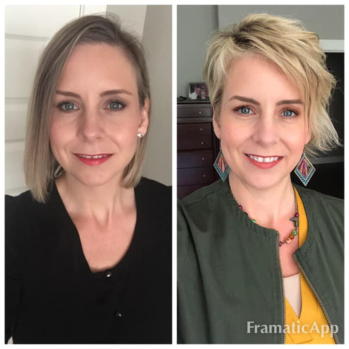 Melissa Type 3 Before & After