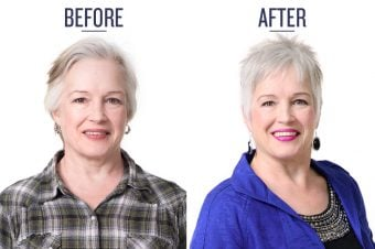 Before and After of woman